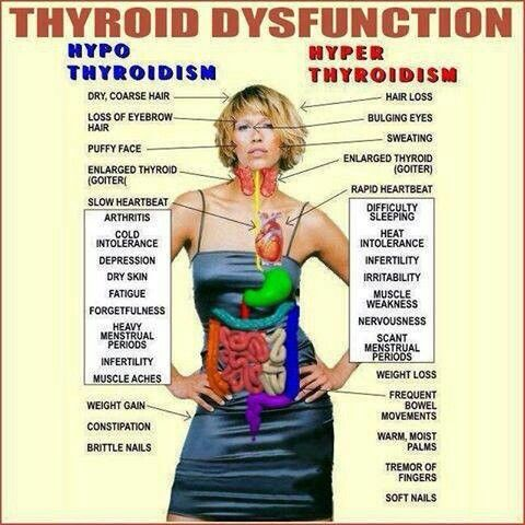 db96da5b232b5d7e6e288497a132d84c--thyroid-issues-thyroid-gland